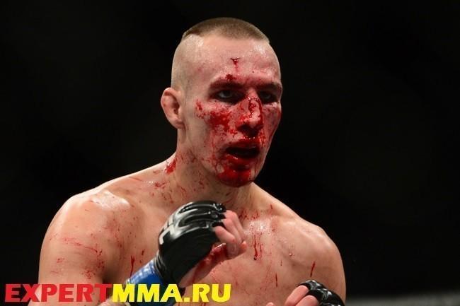 MMA: UFC 189-Lawler vs MacDonald
